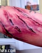 Cicatriz muy conseguida