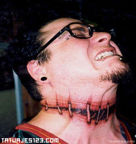 Cuello roto